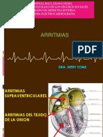 Arritmias Seminario Dr. Pedro