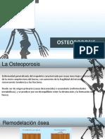 Osteoporosis Diapositivas