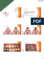 Microbiologia Da Cárie Dentária