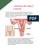 Actividad de Cancer