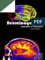 Neuroimagenes aplicadas a psiquiatria