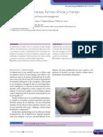 Hipeertricosis.pdf