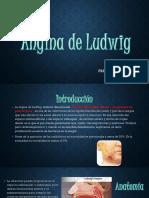 Angina de Ludwing