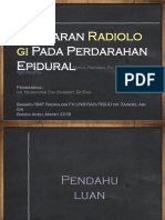 Gambaran radiologi EDH