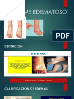 SINDROME EDEMATOSO.pptx