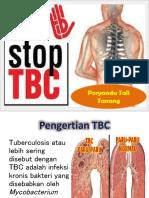 TB PARU (TBC).pptx