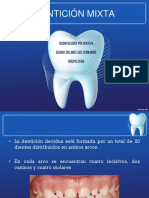 dentición mixta
