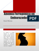 Anemia Ferropénica en Embarazadas
