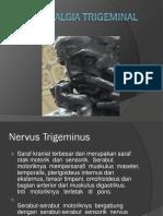 Maju Neuralgia Trigeminal