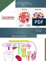 Leucemia Guillermo