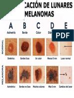 Lunares y Melanomas.pptx