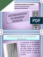 Miembro Inferior Arteriografia