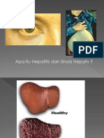 Askep Hepatitis Dan Sirosis Hepatis