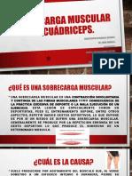 Sobrecarga Muscular de Cuádriceps