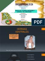 Herniasdelaparedanteriorylateraldelabdomen 141118001058 Conversion Gate01 (1)