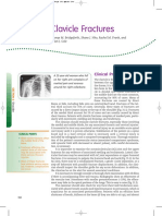 Clavicle Fractures Overview and Treatment