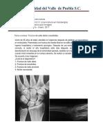 Caso Clinico Fx de Radio Distal y Escafoides
