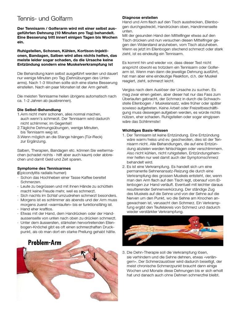 Atemberaubend Sehne Von Hand Anatomie Fotos - Anatomie Ideen ...