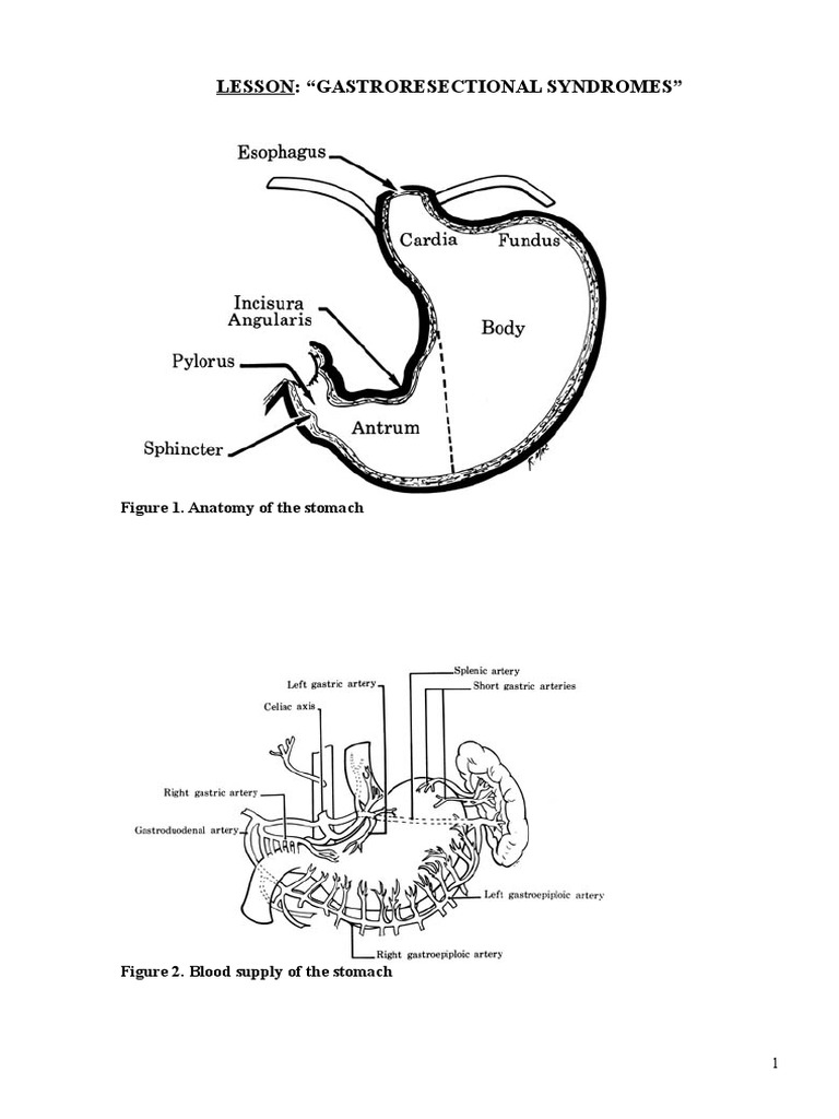 Gestroresectional Syndromes | Stomach | Gastroesophageal Reflux Disease
