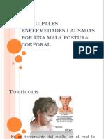 principalesenfermedadescausadasporunamalaposturacorporal-110105234203-phpapp01 (1).pptx