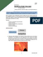 Exodoncia Por Colgajo