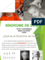 Sindrome de Down