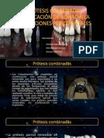 Protesis Combinada Clasificacion de Bonachela y Consideraciones Periodontales