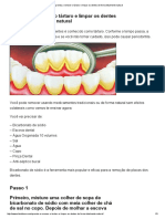 Aprenda a Remover o Tártaro e Limpar Os Dentes de Forma Totalmente Natural