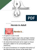 Hernia-Adult.pptx