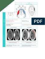 Tipo de Hematoma Epidural / Subdural