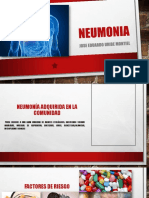 Pepin Neumonia