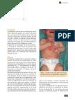 escabiosis.pdf