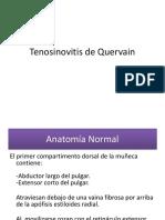 Tenosinovitis de Quervain