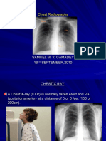 Plain Chest X Ray