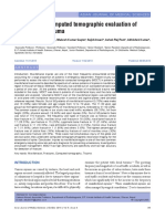 13. Multidetector Coputed Tomographic Evaluation of Maxilofacial Trauma