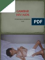 Gambar Hiv Aids