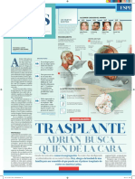 Transplantes de Cara (Adrian) 30