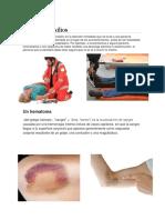 PRIMEROS AUXILIOS HEMATOMA2
