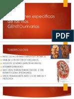 Infecciones Especificas de Las Vías Genitourinarias