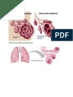 Alveoli paru yang normal.doc
