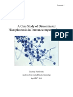 au di major case study histoplasmosis