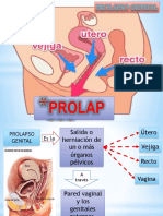 PROLAPSO-ppt