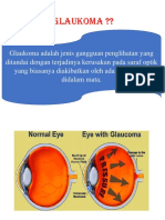pengertian glaukoma