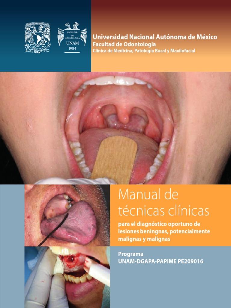 Cancer bucal unam, Cancer bucal primeros sintomas - coboramlaprima.ro - Cancer bucal en panama