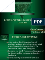 Developmentaldisordersoftongue Elvischirameldavid 131010094611 Phpapp02