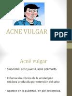 Acne Vulgar
