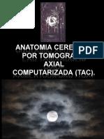 22532045 Anatomia Cerebral Por Tomografia Axial 110808025752 Phpapp02