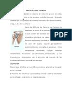 Fractura Del Humero