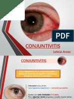 Conjuntivitis Charla