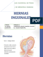 herniasinguinales-130901224734-phpapp02